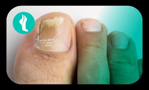 Es hora de lucir unos pies hermosos, cuídate de la onicomicosis