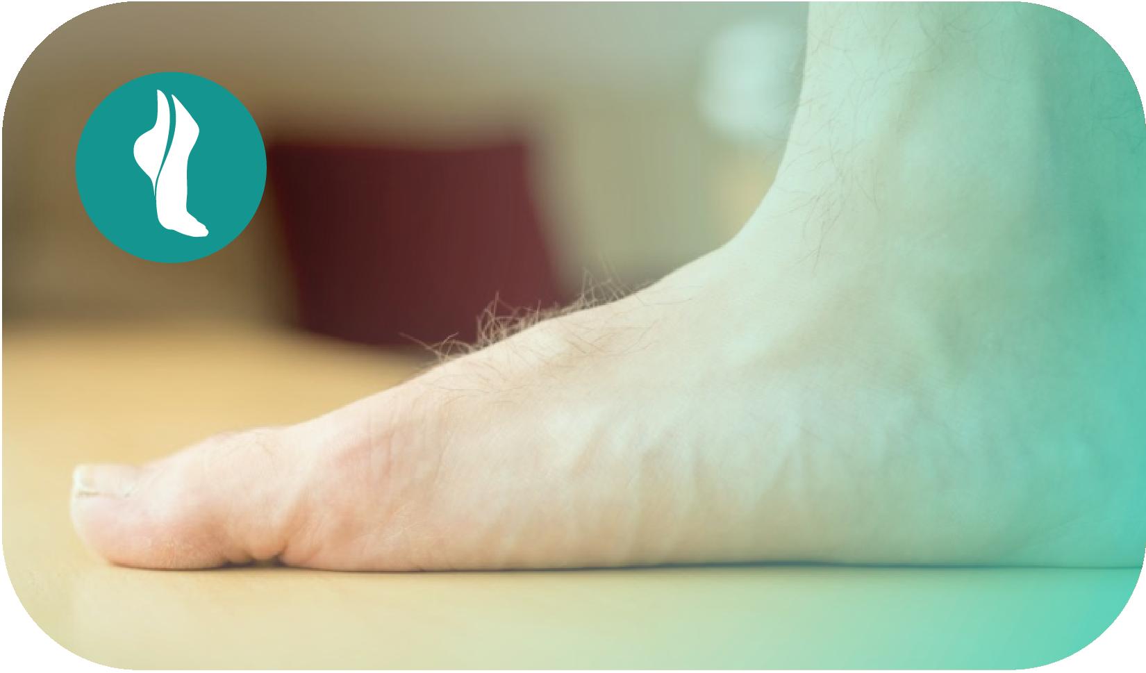 ¿Qué causa el pie plano y cómo se puede corregir?